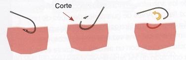 cómo sacar un anzuelo clavado